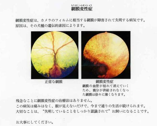 網膜変性症